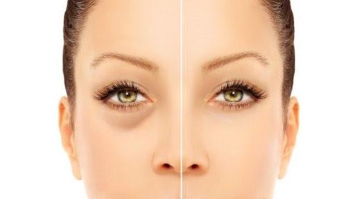 1. kép - a táskás szemek semmiképp sem nyújtanak esztétikus látványt